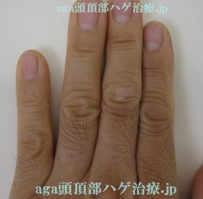 手の指の毛の写真