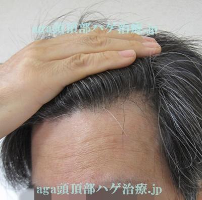 M字の薄毛の写真